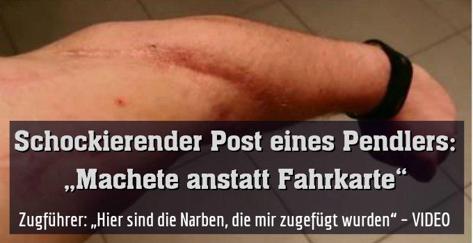 """Zugführer: """"Hier sind die Narben, die mir zugefügt wurden"""" – VIDEO"""