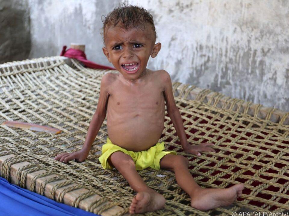 Konflikt im Jemen gerät in Vergessenheit