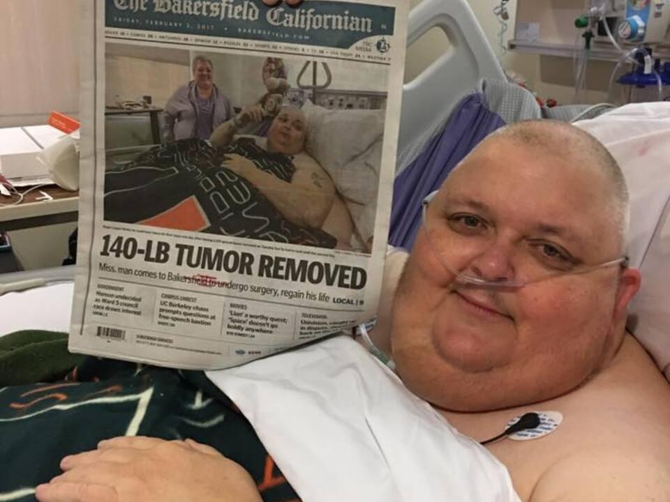 59 Kilo schwerer Tumor entfernt