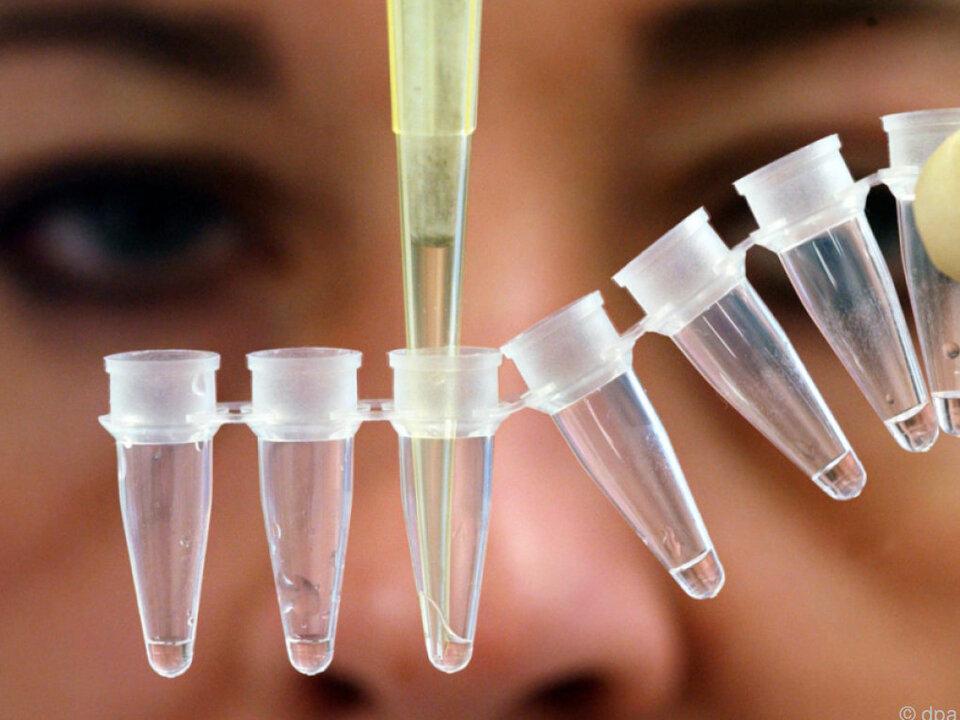 Ein Abgleich von DNA und Fingerabdrücken soll Klarheit bringen