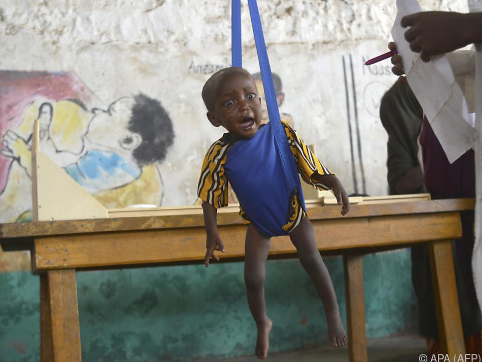 Millionen Kinder leiden als Folge von Hunger an Mangelerscheinungen