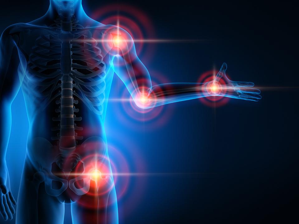 Gelenkschmerzen schmerzen rheuma sym