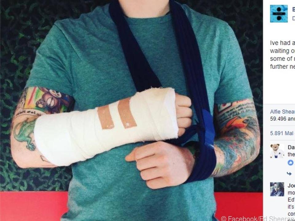 Ed Sheeran: Nach dramatischem Verkehrsunfall im Krankenhaus!