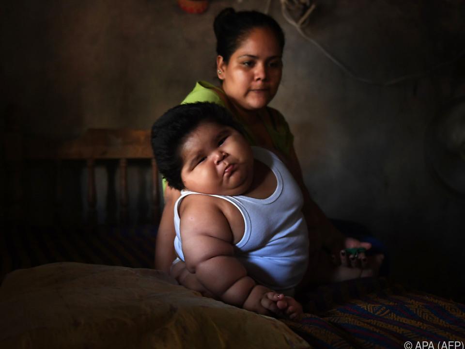 Das Leben von Luis ist wegen seines Gewichts in Gefahr
