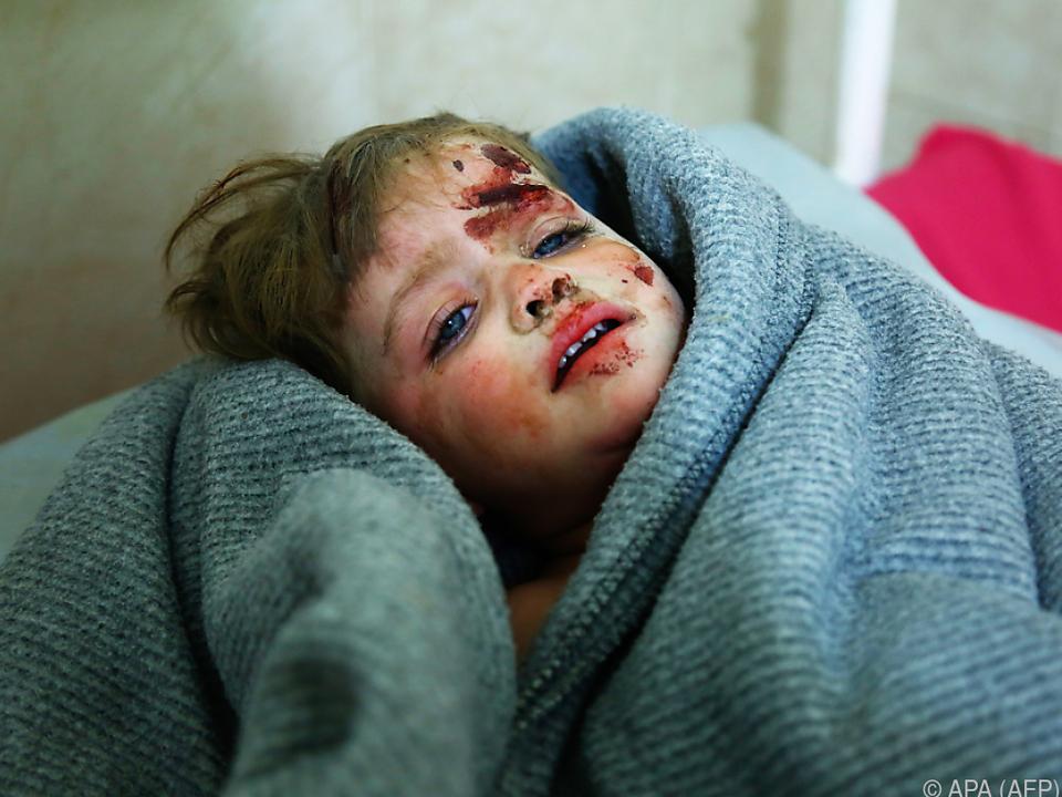 Evakuierung der Kinder aus Rebellenhochburg Ost-Ghouta gefordert