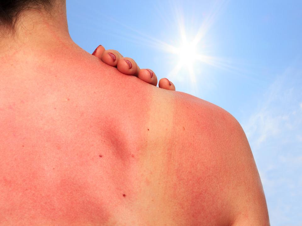 Sonnenbrand sommer urlaub strand hautkrebs melanom sonne