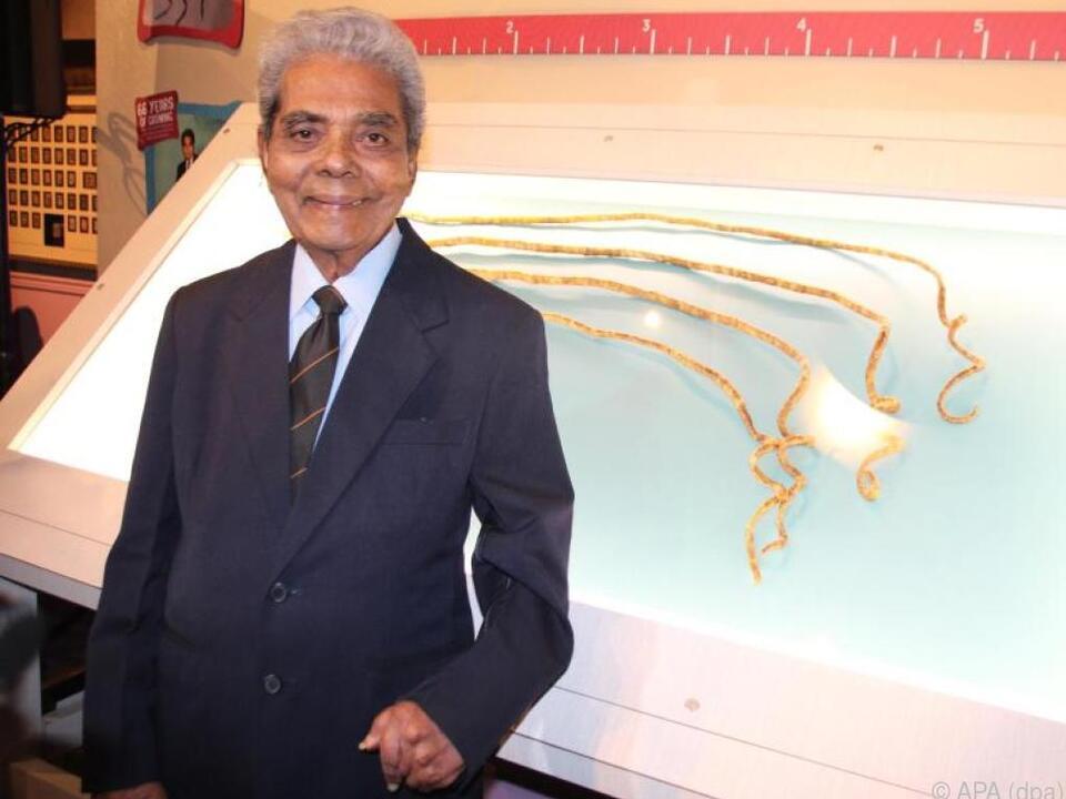 Chillal ließ seine Fingernägel (im Bild hinten) 66 Jahre lang wachsen