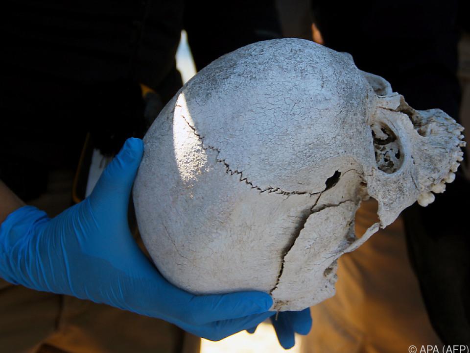 Es wurden 199 menschliche Knochen gefunden