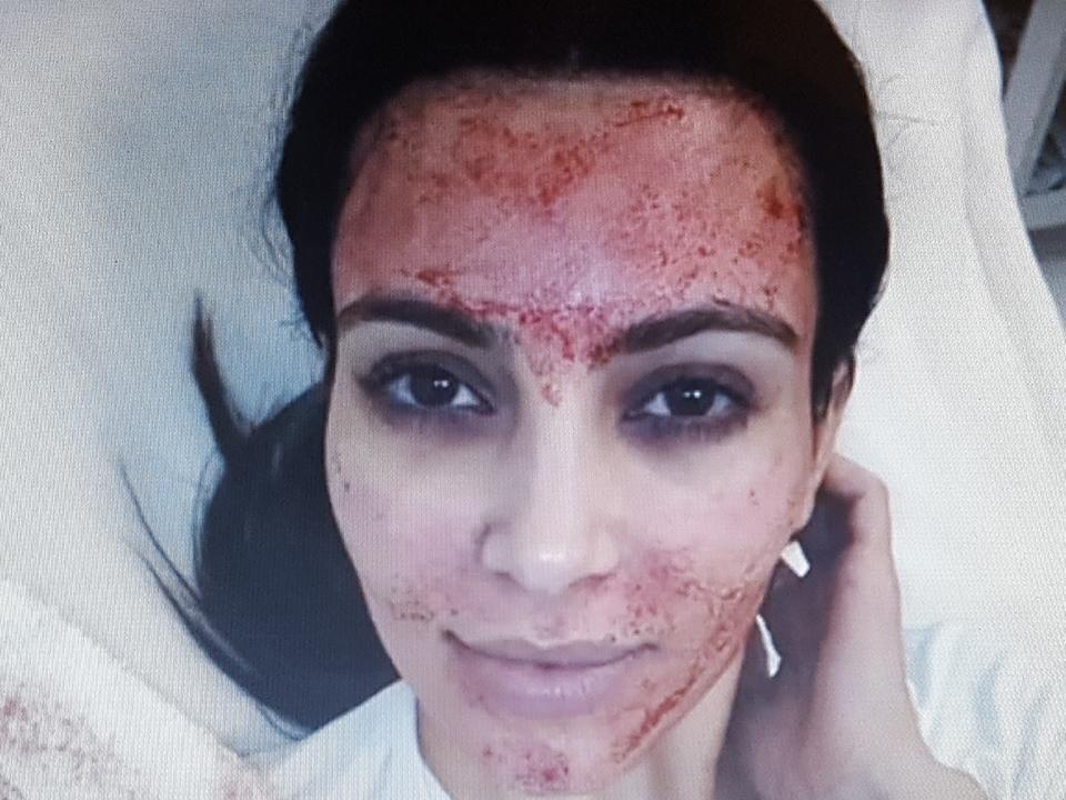 Kim Kardashian, Vampir-Lifting