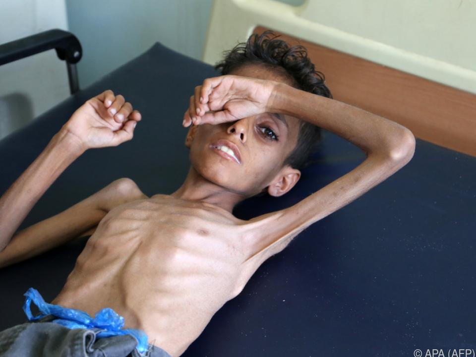 Aufrüttelnde Bilder aus dem Bürgerkriegsland Jemen