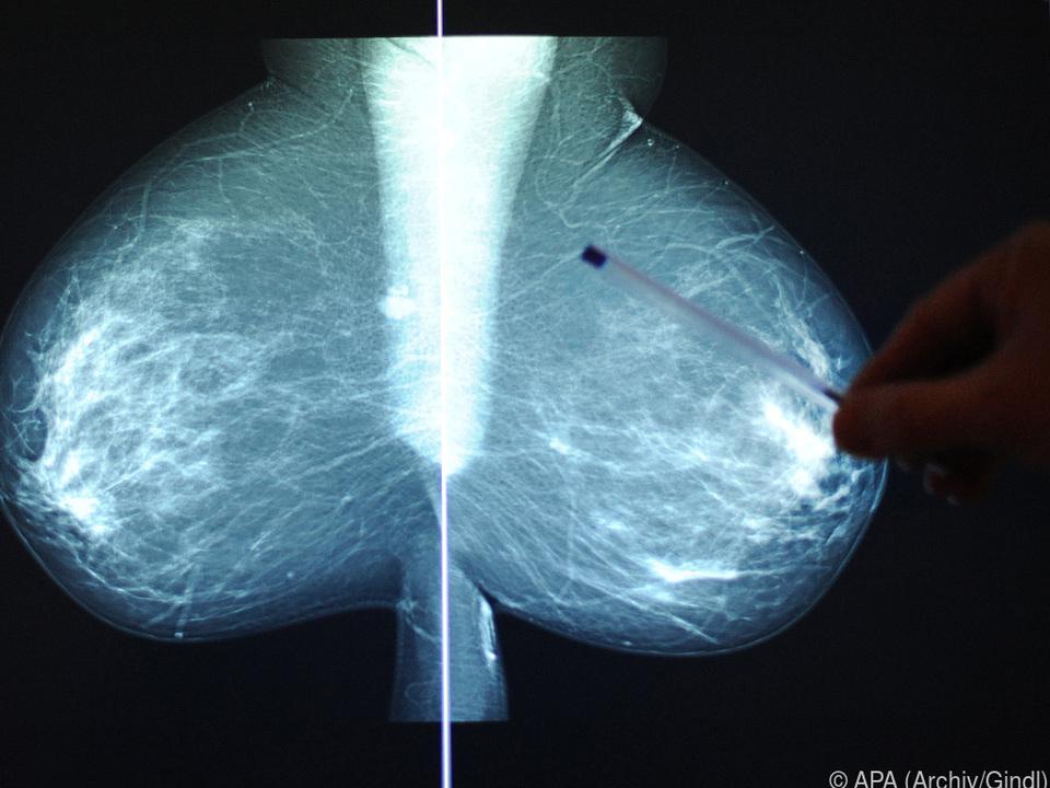Brustkrebs häufigste krebsbedingte Todesursache bei Frauen