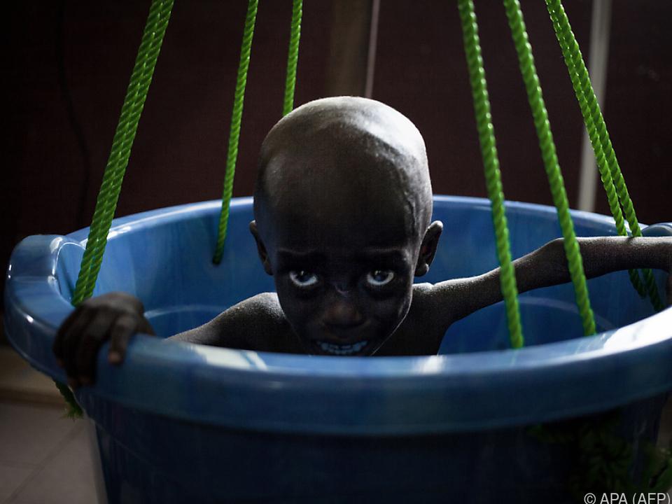 In Afrika kommen nur 16 Prozent der Kinder zu Sozialhilfen