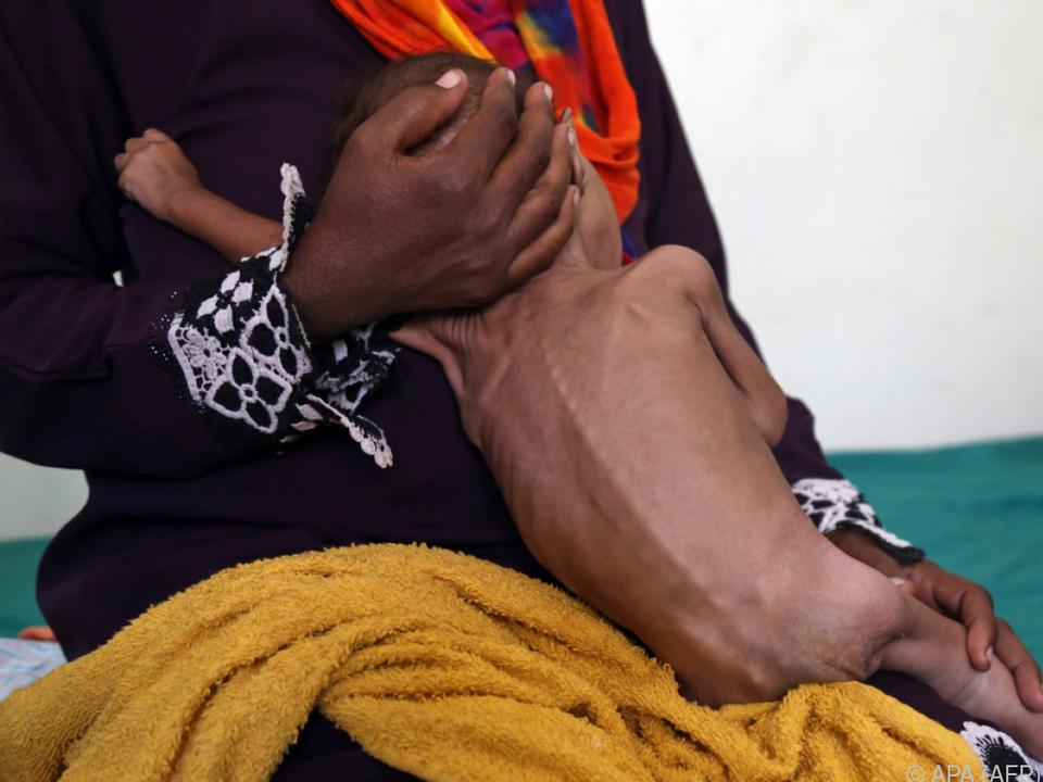 Der Jemen ist von der humanitären Krise besonders betroffen