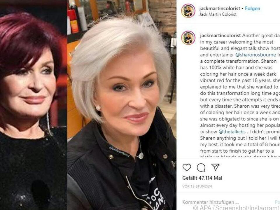 Auf Instagram veröffentlichte der Stylist ein Vorher-Nachher-Bild