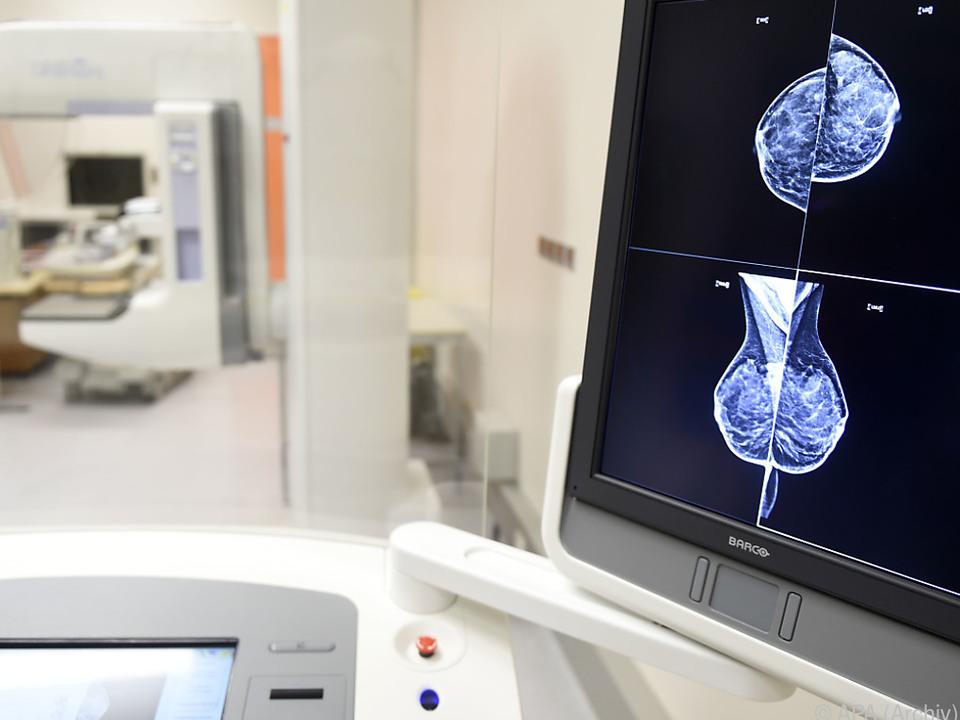 Überlebensdauer bei Brustkrebs leicht gesteigert