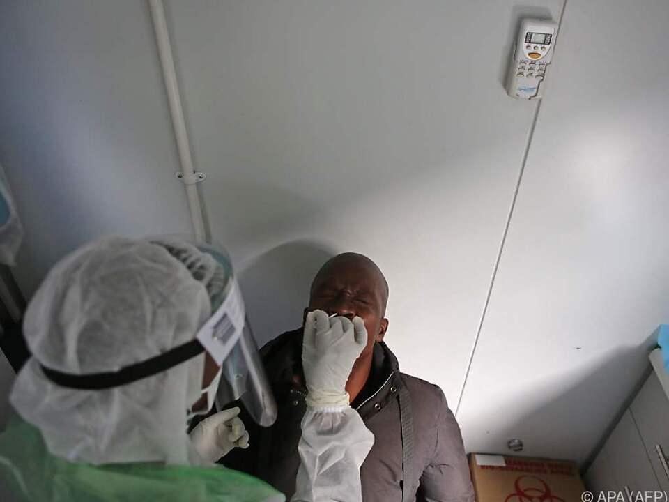 25 Prozent aller Fälle treten in Südafrika auf