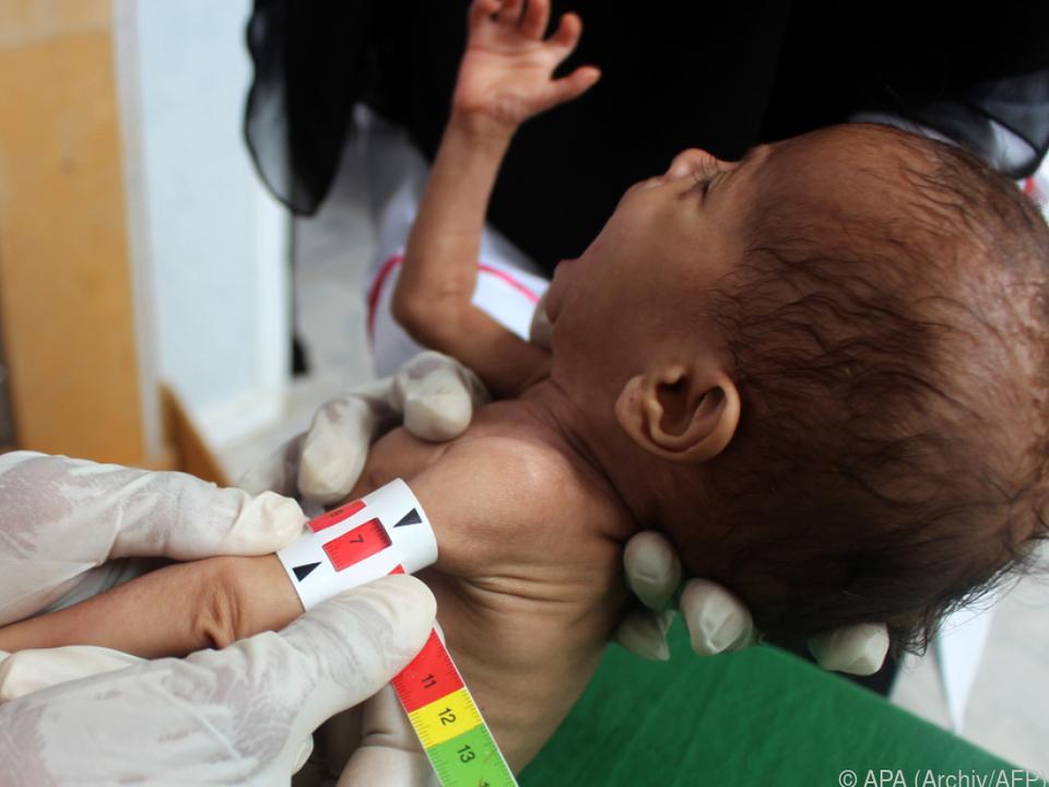 Besonders stark betroffen vom Hunger sind Kinder