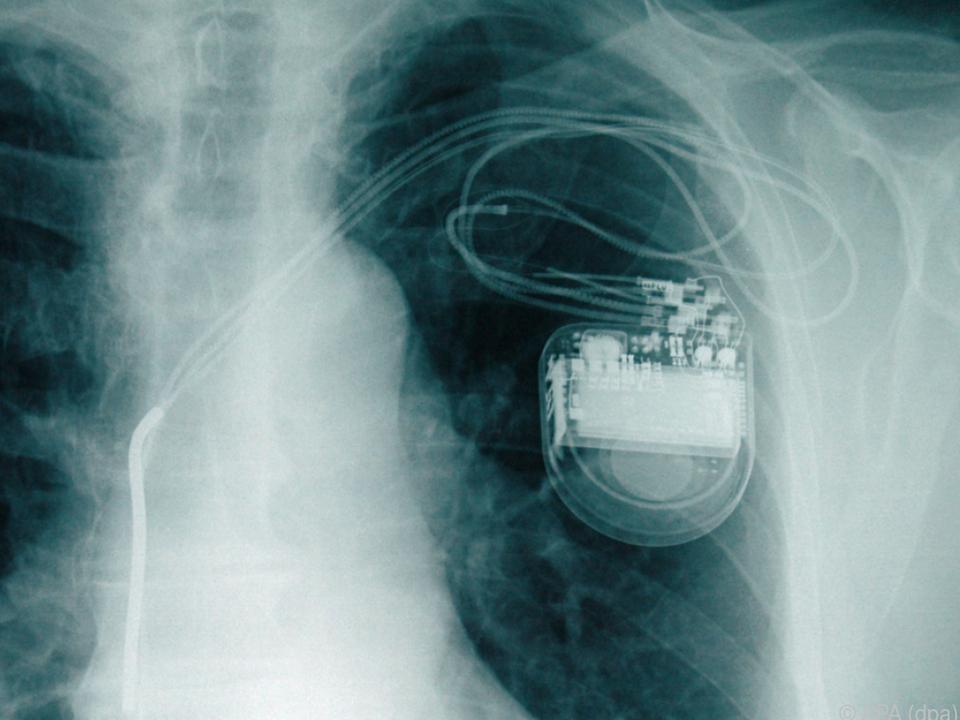 Herzschrittmacher - Lebensretter unter der Haut