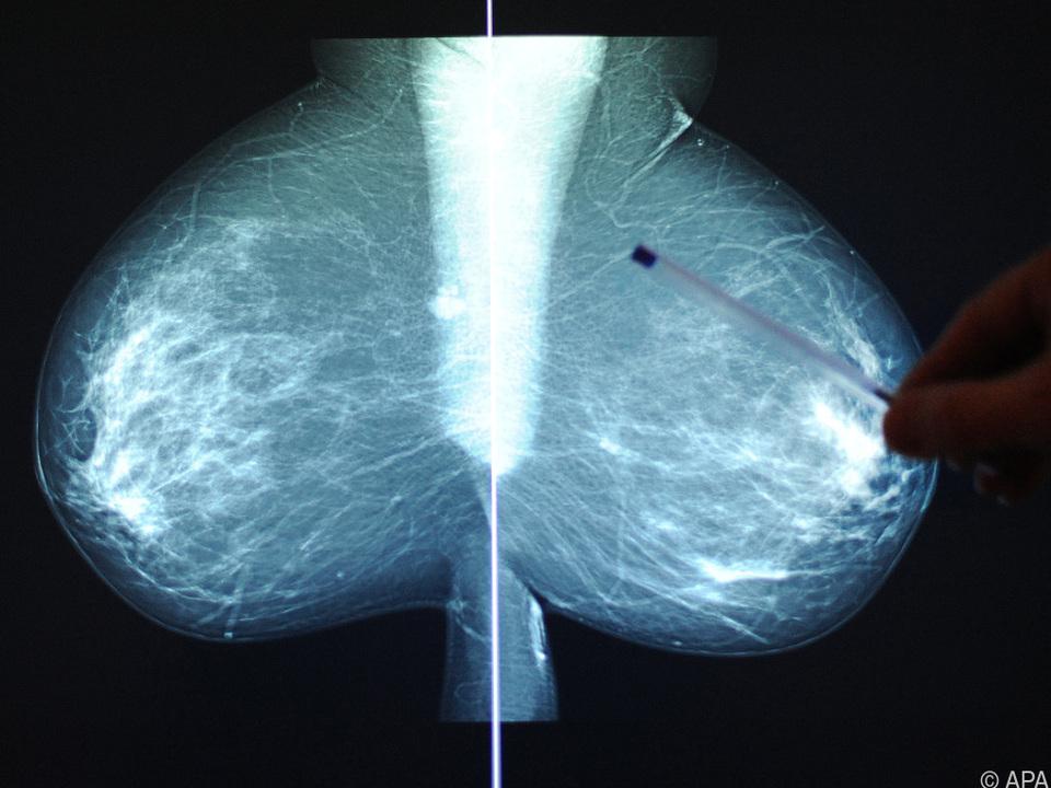 Brustkrebs bei Frauen häufigste Todesursache bei bösen Tumoren
