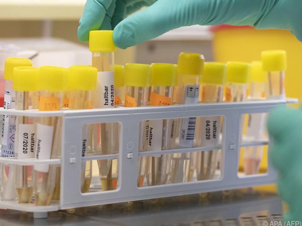 Meisten Fälle der südafrikansichen Mutation in Österreich