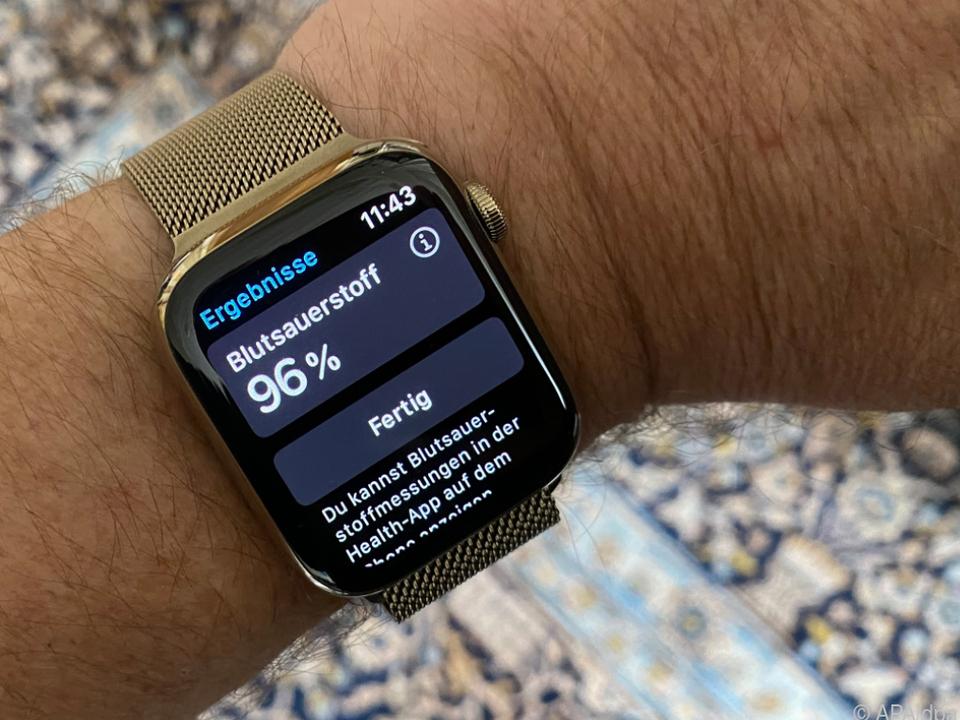 Die Apple Watch Series 6 ist aktuell die beste getestete Smartwatch