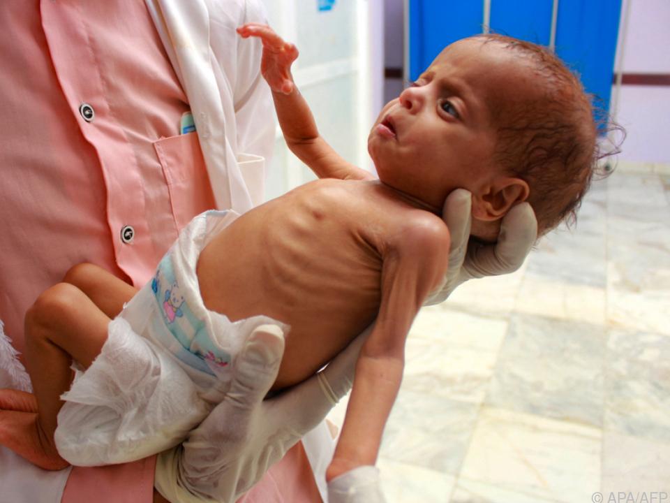 90 Millionen Kinder sind von Mangelernährung bedroht